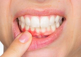 Hastalığın sebebi dişleriniz olabilir